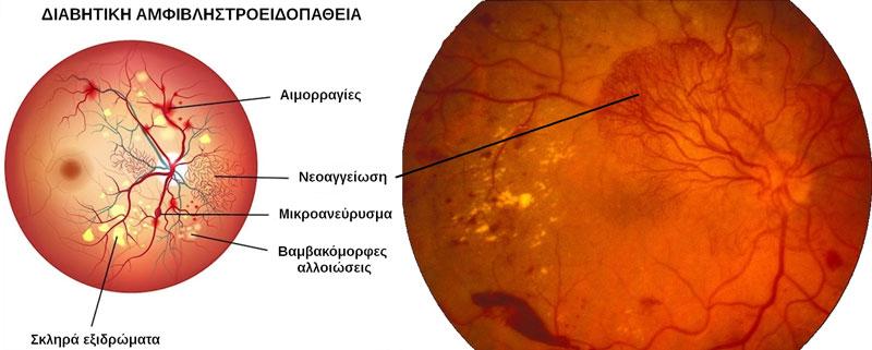 6bb0647752 ΔΙΑΒΗΤΙΚΗ ΑΜΦΙΒΛΗΣΤΡΟΕΙΔΟΠΑΘΕΙΑ – Οφθαλμίατρος Παυλόπουλος