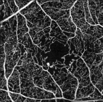 Οπτική Αγγειογραφία (Angio-OCT) - Ισχαιμία, μικροανευρύσματα