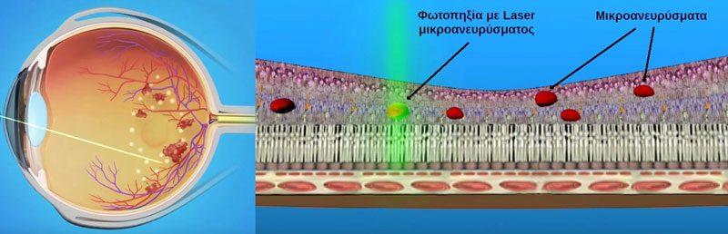 Φωτοπηξία με Laser μικροανευρυσμάτων