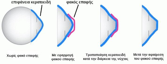 7d54438858 ΑΝΤΙΜΕΤΩΠΙΣΗ ΤΗΣ ΜΥΩΠΙΑΣ – Οφθαλμίατρος Παυλόπουλος
