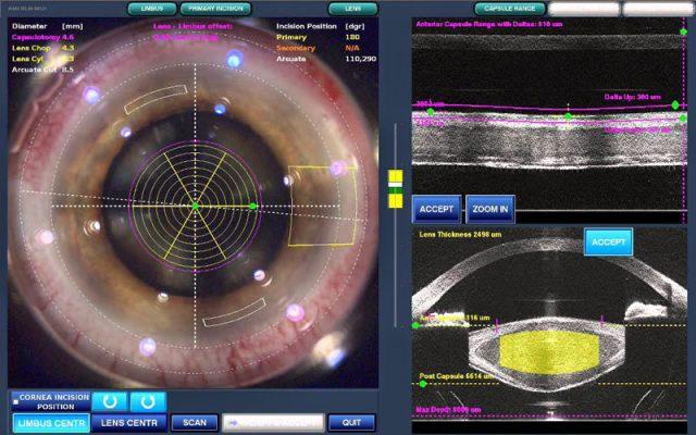 Χειρουργείται-ο-καταρράκτης-με-Laser