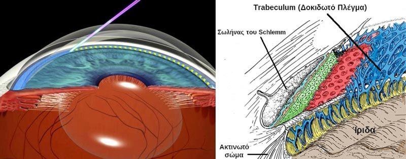 Laser-στο-γλαύκωμα