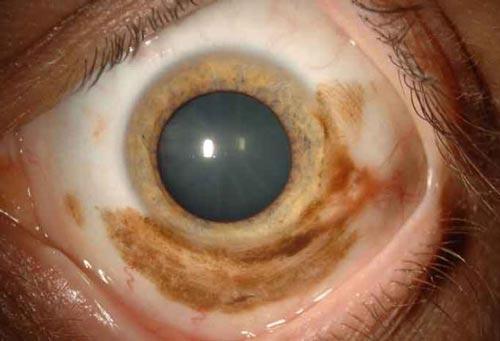 Όγκοι επιφάνειας οφθαλμού