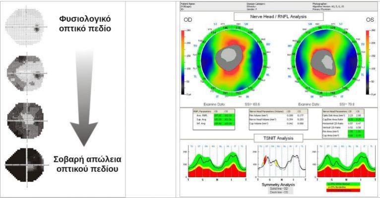 Επιδείνωση των οπτικών πεδίων Η Οπτική τομογραφία (OCT) στο γλαύκωμα