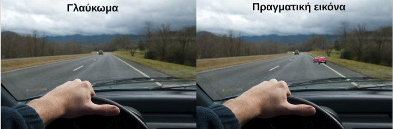 Ο γλαυκωματικός με βλάβη στη δεξιά πλευρά του οπτικού του πεδίου δεν βλέπει ότι υπάρχει ένα αυτοκίνητο που αλλάζει λωρίδα