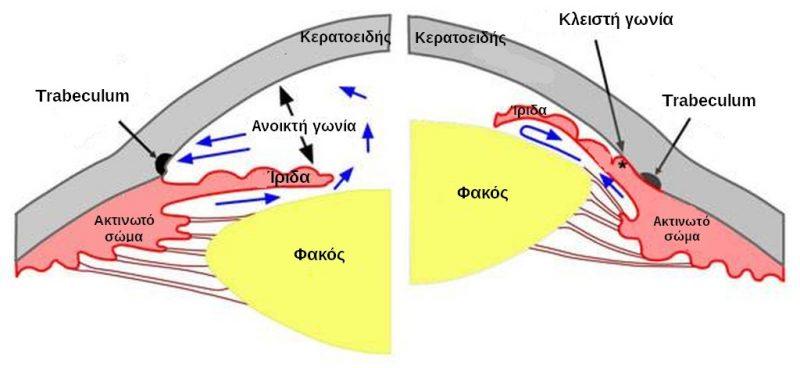 e0db95c961 LASER ΣΤΟ ΓΛΑΥΚΩΜΑ – Οφθαλμίατρος Παυλόπουλος