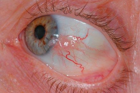 όγκοι της οφθαλμικής επιφάνειας