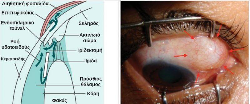 Τραμπεκουλεκτομή (Ανατομία) Διηθητική φυσαλίδα (βέλη)